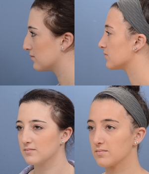 Rhinoplasty Patient 9