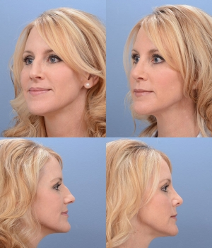 Rhinoplasty Patient 5